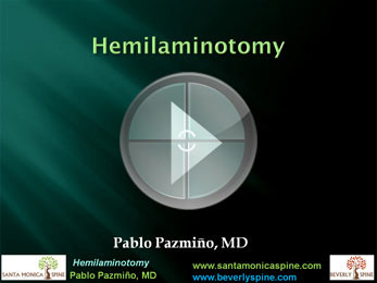 Hemilaminotomy