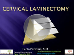 cervical_laminectomy
