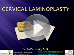 cervical_laminoplasty