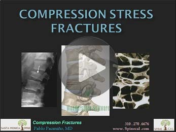 Compression Stress Fractures