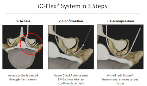 io-flex-system-3-step