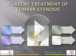 lumbar_stenosis_current