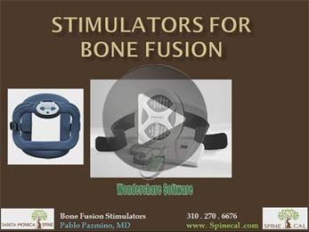 Stimulators For Bone Fusion